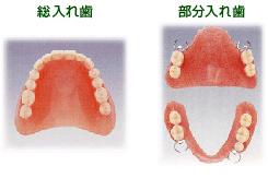 入れ歯01