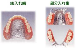 入れ歯02