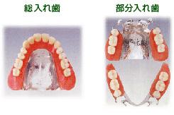 入れ歯03